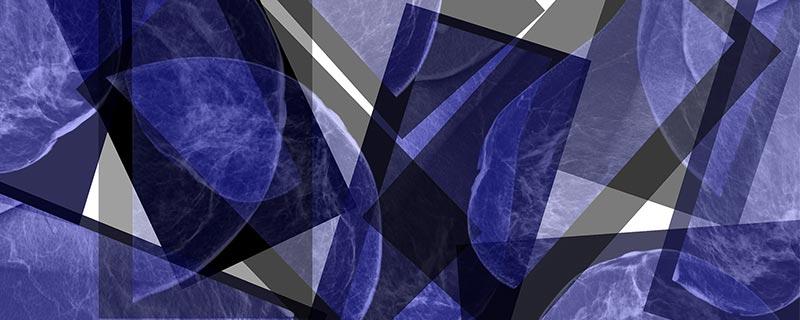 breast-x-ray