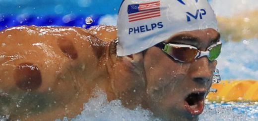 Cupping Is Stealing The Spotlight At The Olympics
