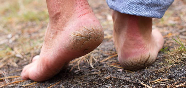 Use This Easy-To-Make Home Remedy For Cracked Heels