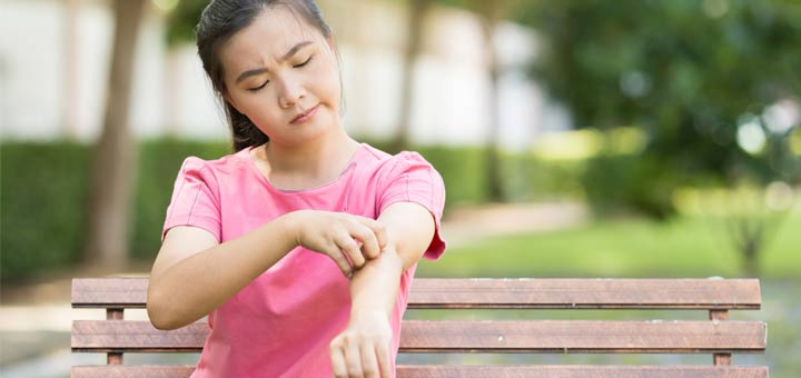 Eczema: What It Is And The Best Natural Remedies