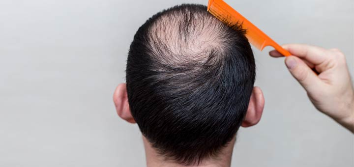 Is Your Hair Thinning? Try This At-Home Trick
