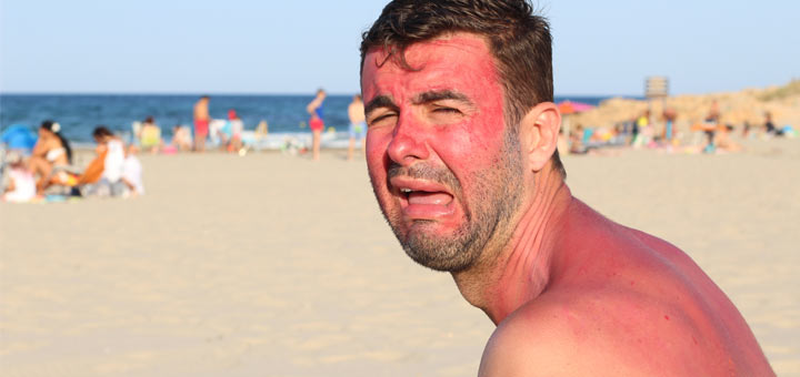 How To Get Rid Of A Sunburn ASAP: 7 Home Remedies