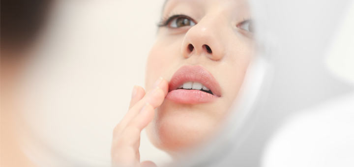 Natural Remedies That Help Relieve Cold Sores