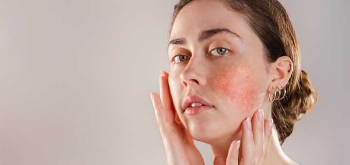 Natural Remedies To Help Manage Rosacea